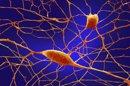 Cinco grandes enfermedades mentales comparten factores genéticos de riesgo